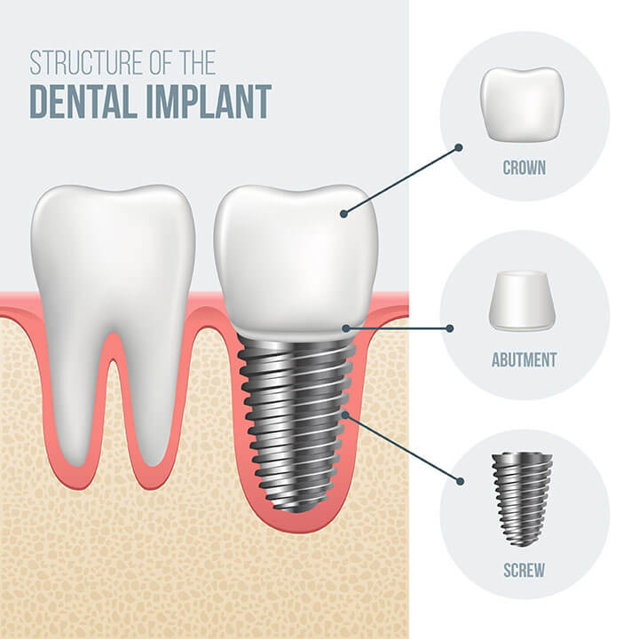 What are Dental Implants? | Explore Houston Implant Dentistry